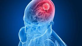 De 21 a 25 de Setembro: 8ª Semana de Sensibilização para o Cancro de Cabeça e Pescoço